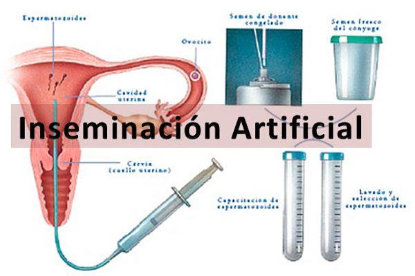 Inseminación Artificial (IAC)