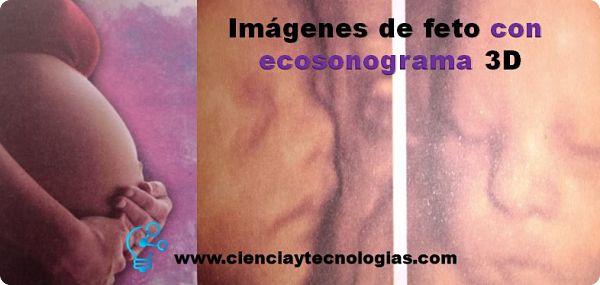 Imágenes de feto con ecosonograma 3D